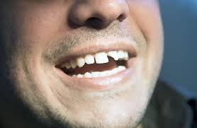 Chipped Tooth Accident Claims