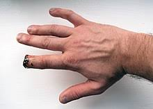 arm amputation