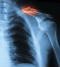 Upper Body Injury